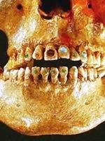 Череп, найденный на американском континенте. Более 2,5 тысяч лет назад те, кто там проживал, могли вставлять в зубы драгоценные камни
