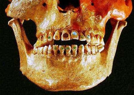 3. Древние зубы с драгоценными камнямиЭта находка освещает мастерство дантистов древних времен. Коренные американцы могли вставлять в зубы драгоценные камни еще 2,5 тысячи лет назад.