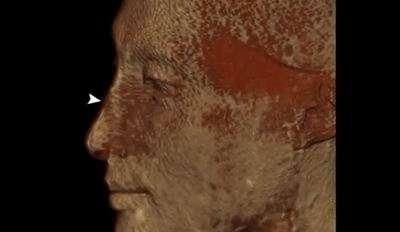 Горбинка в средней части носа