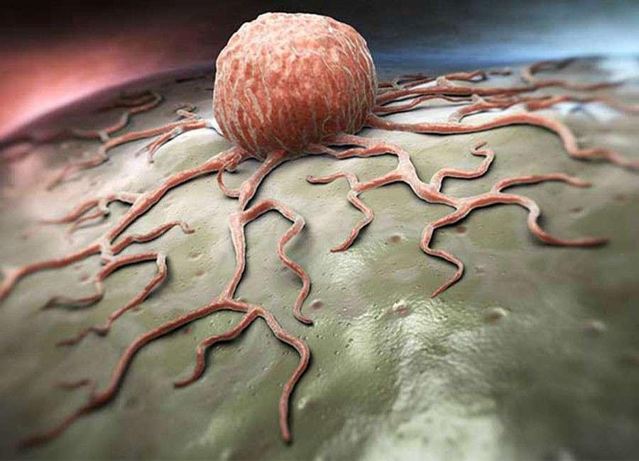 Химиотерапия не лечит, а убивает иммунитет и вызывает вторичный рак