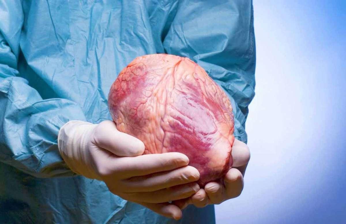 Органы для трансплантации извлекают у доноров, когда они еще живы