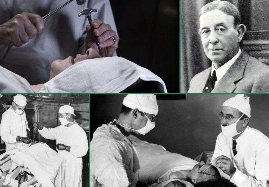 Обман в доказательной медицине, пример этому доказанный и запрещенный метод – лоботомия