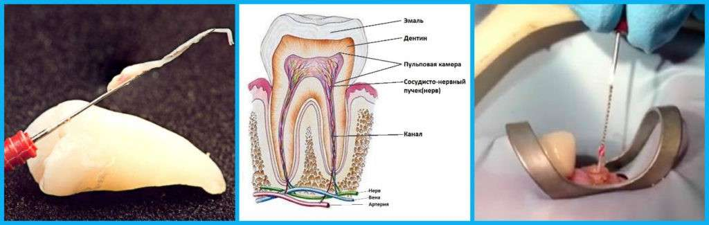 Связь развития рака и других заболеваний с инфекцией в корневом канале зуба