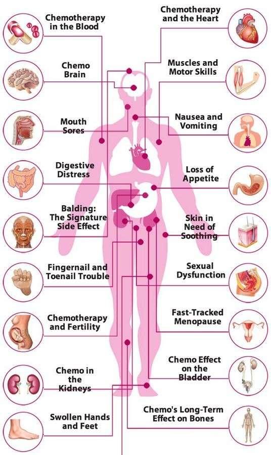 Химиотерапия – это оружие для убийства. Онкобольные не от рака, а от умирают химиотерапии