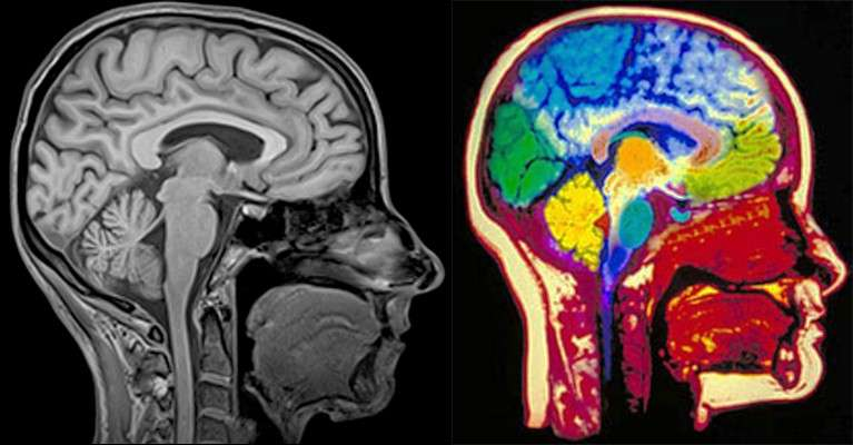 Радиологи скрывают опасность при проведении МРТ