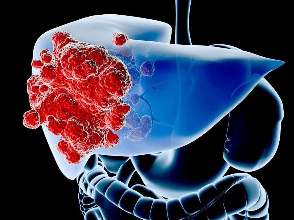 Химиотерапия бесполезна против рака – вывод немецкого врача онколога Ульрих Абель
