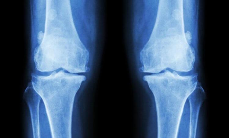 Почему у вегетарианцев хрупкие кости? Почему человек всеяден?