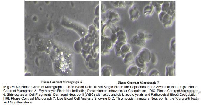 Учёные нашли в вакцинах от коронавируса графен, металл и даже колонию паразитов