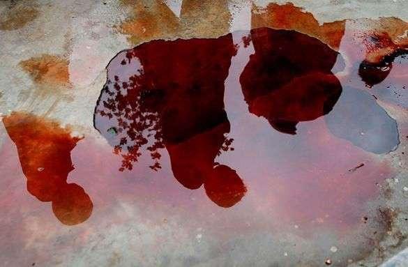 Семилетнему мальчику кололи иглами руки, чтоб знал, как мучился Христос - католическое воспитание в Словакии. 316725.jpeg