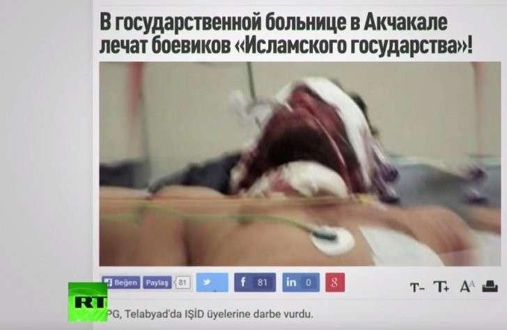 Лечение террористов ИГ в больницах Турции санкционировано властями
