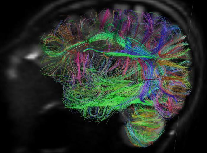 Мозги мужчин и женщин отличаются ориентацией нейронных связей