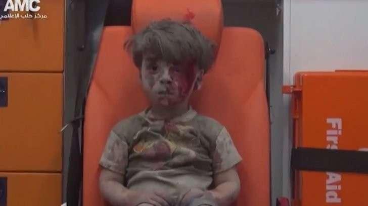 Безсовестные западные СМИ сделали раненого сирийского мальчика жертвой «российского» авиаудара