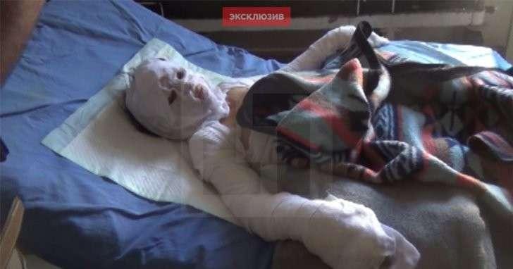 Западные СМИ выдали пострадавшую от пожара девочку за жертву удара ВКС РФ