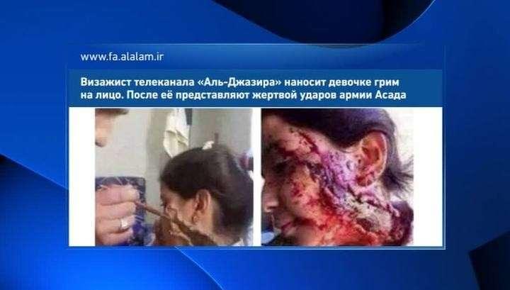 Англо-саксы жгут: девочку, «раненную солдатами Асада», загримировали в «Аль-Джазире»