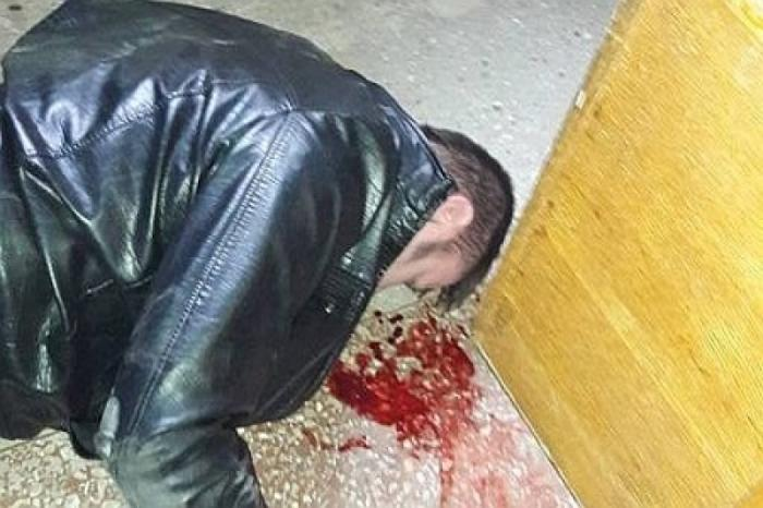 Украина: мэр Конотопа в балаклаве изувечил посетителей в своем кабинете. Це Европа!