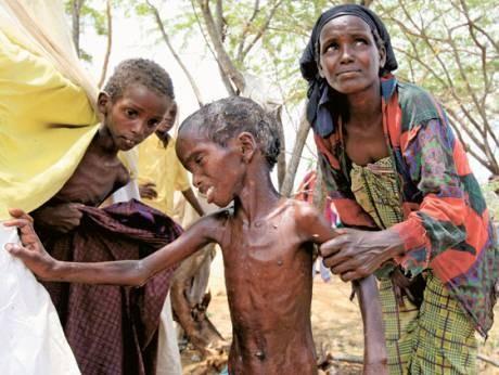 Голод в Йемене создан глобалистами США в сговоре с монархиями персидского залива