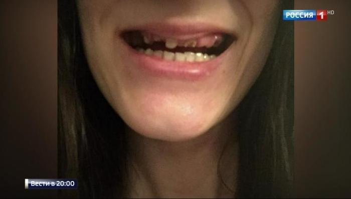 В Петербурге «одна из лучших» стоматологов оставила пациентов без здоровых зубов и «ушла в бега»