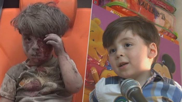 Отец раненного в Алеппо мальчика раскрыл правду о «Белых касках»