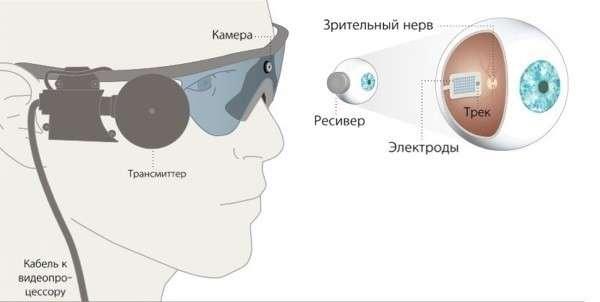 В России слепоглухому пациенту впервые установили бионический глаз