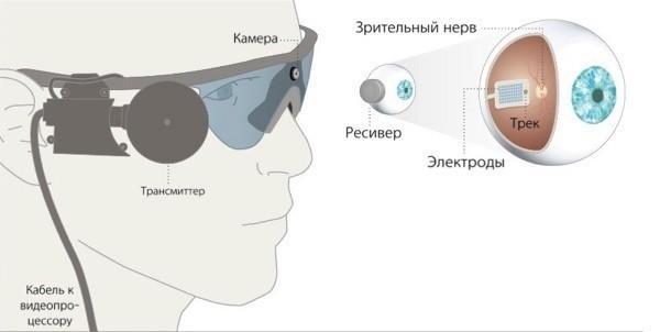 ВРоссии впервые успешно проведена установка бионического глаза слепоглухому пациенту