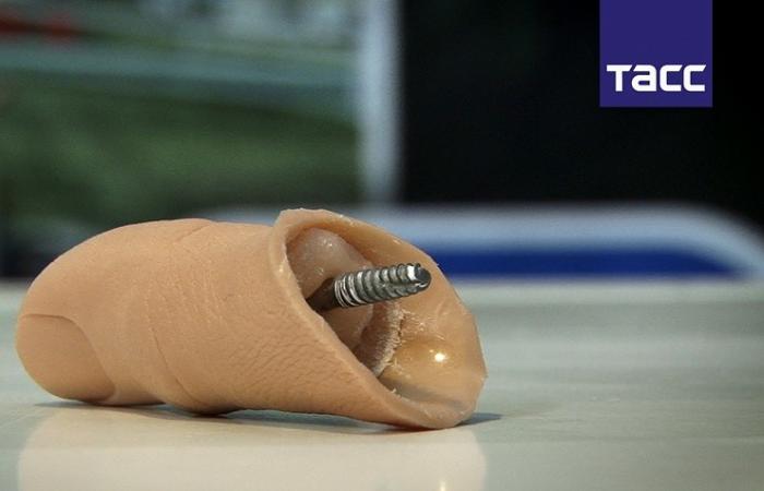 В России успешно завершили испытания по вживлению имплантов, распечатанных на 3D-принтере