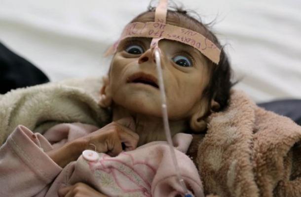 Хуситы и Иран кажется проигрывают войну в Йемене. Сражение за Ходейду