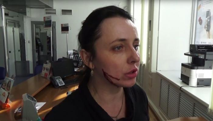 В Воронеже дикая сотрудница банка проткнула женщине щеку шариковой ручкой