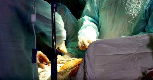 В США медики по ошибке удалили обе почки 73-летней пациентке