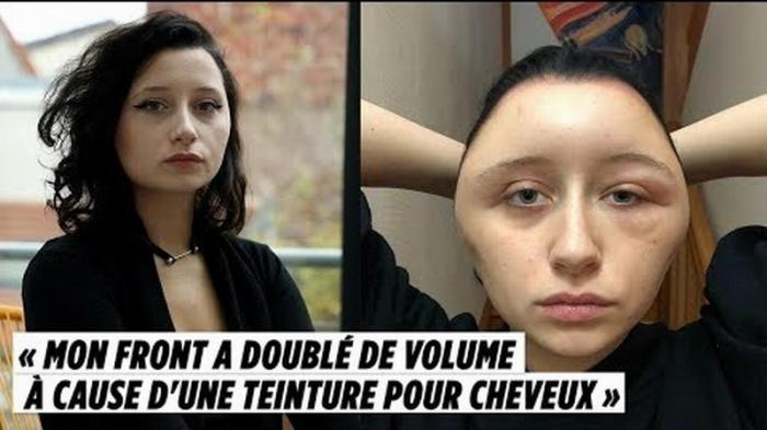 Краска для волос деформировала лицо у француженки
