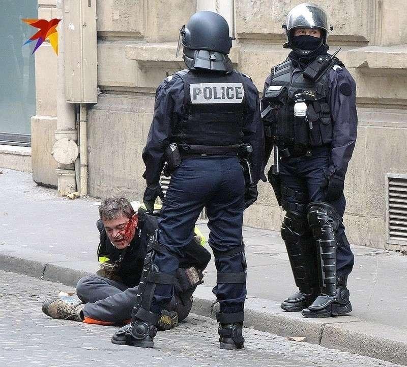 Один из задержанных истекает кровью под надзором полицейских. Фото: Дарья АСЛАМОВА
