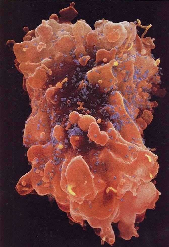 Наша невероятная иммунная система в микрофотографиях
