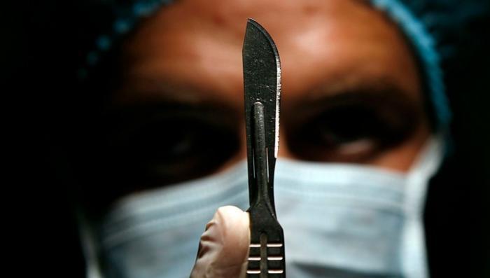 Умерла пациентка, у которой безграмотный хирург перепутал грыжу с аппендицитом