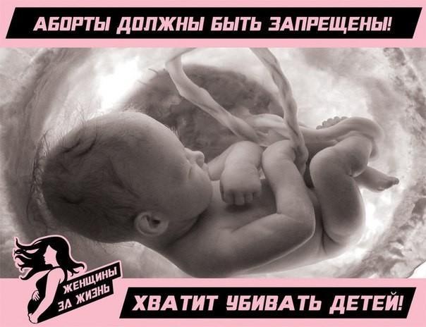 Аборты должны быть запрещены! Хватит убивать детей!