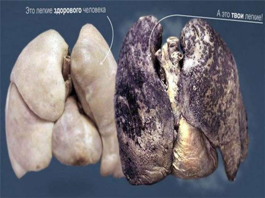 Наркотическая война. Курение – оружие геноцида людей