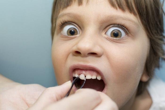Опыт удаления молочного зуба в Европе. Слабонервным не читать 18+