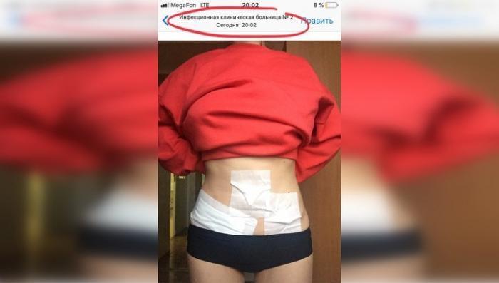 Сальмонеллез приняли за аппендицит: жертву вендингового автомата Healthy Food разрезали «просто так»