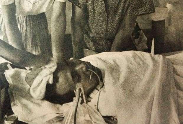 Японский рыбак Айкити Кубояма получил смертельные дозы радиации