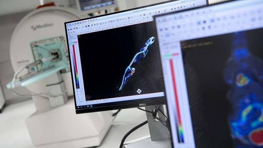 Компьютерная томография и рентген способствуют распространению раковых клеток
